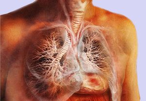 Cauza traheitei infecțioase sunt bacteriile și virușii