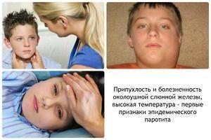 Căile de infecție cu oreion