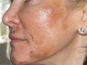 Metoda de curățare a feței