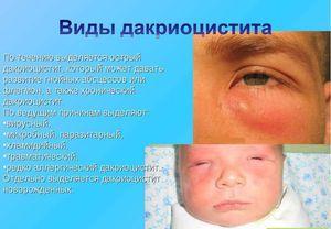 Masaj cu boală și canale lacrimale