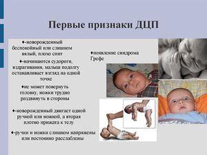 Cerebral paralizie la copii