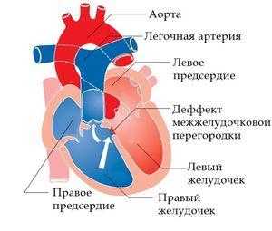 Patologia în lucrarea inimii