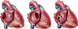 Defecte în septul inimii