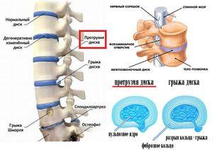 Tratamentul modificărilor degenerative ale coloanei vertebrale