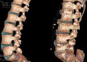 Simptomele modificării coloanei degenerative