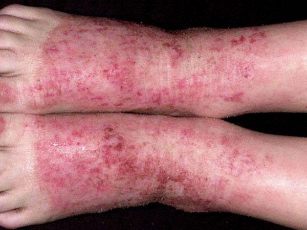 Picioarele și dermatita