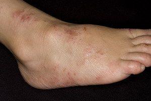 Tipuri de dermatită