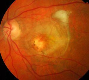 Cum se manifestă distrofia retiniană