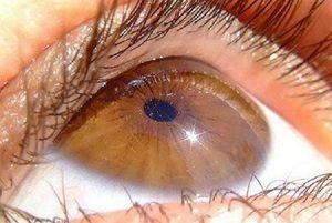 Costul chirurgiei oculare