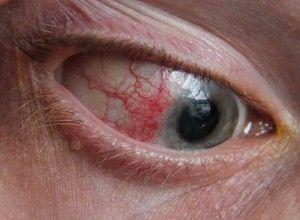Keratita - boala oculară