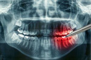 Importanța examinării cu raze X a dinților