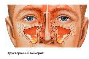 Sinuzită biliară la copii și adulți