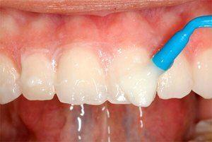 Tratamentul fluorozelor