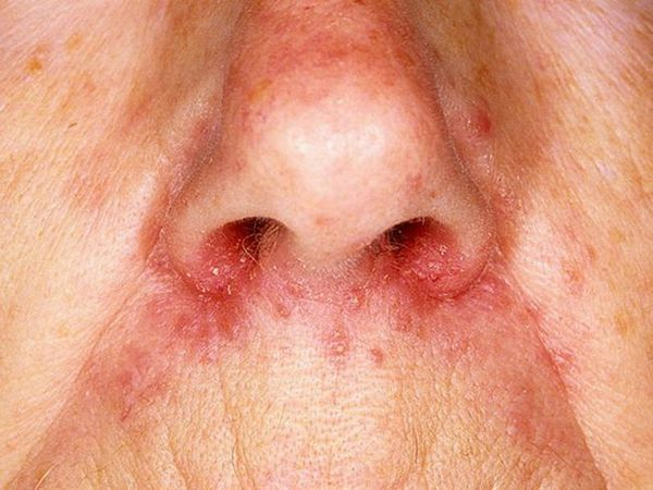Tipul bolii foliculita