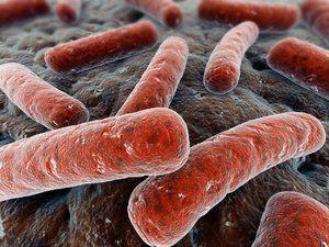 Gardnerella - cum se determină boala?