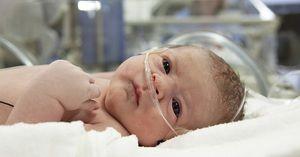 Boala hemoragică a nou-născuților