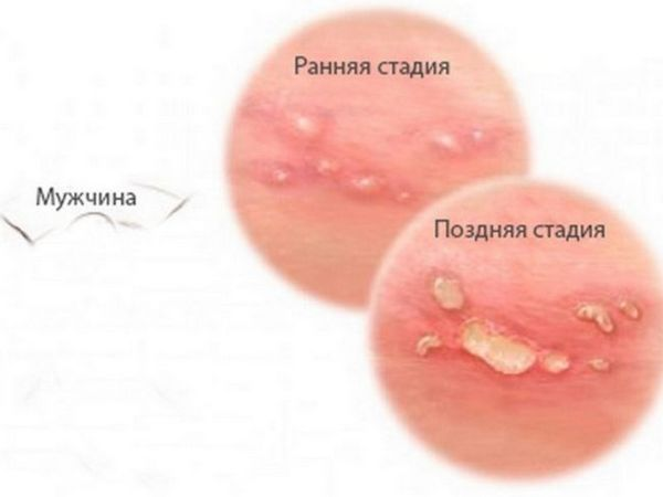 Herpesul pe corp