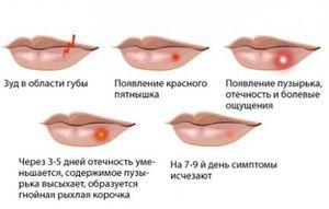 Ce etape de dezvoltare este herpesul