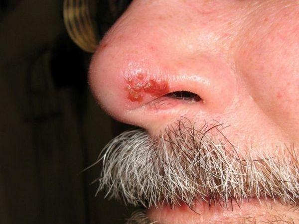 Herpesul pe nas și pe buze