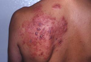 Cum se manifestă herpesul pe corp