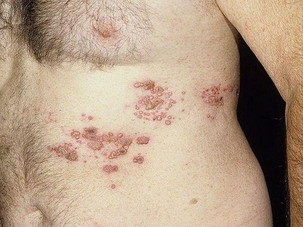 Tipuri de herpes