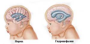 Hidrocefalie la copii