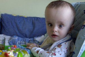 Simptomele bolii la copii mai mari de doi ani
