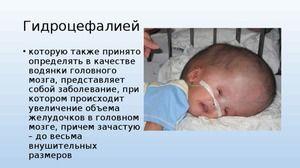 Cauzele de hidrocefalie