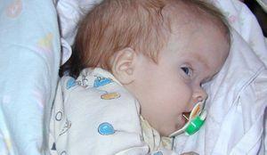 Cortex cerebral nou-născut