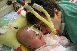 Tratamentul hidrocefaliei