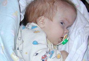 Cauzele de hidrocefalie la copii