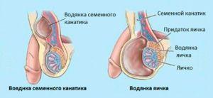 Achizitionarea hidrocelei - cauze posibile