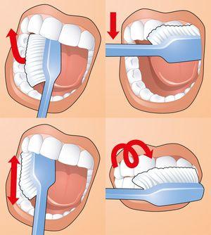 Schema de curățare dentară adecvată