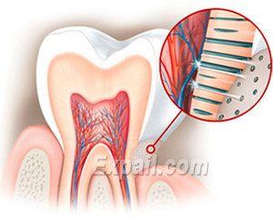 Cauze de hiperestezie a smalțului dinților