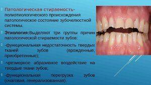 Cum de a vindeca dintii