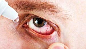 Instrucțiuni pentru utilizarea picăturilor de ochi Albucid
