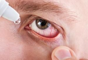 Indicații pentru utilizarea picăturilor de ochi Balarpan și instrucțiuni