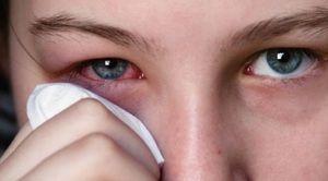 Indicații pentru utilizarea picăturilor de ochi Tsiprolet