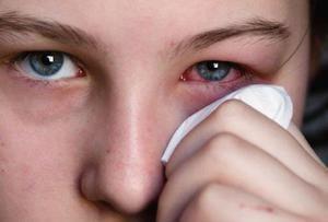 Indicații pentru utilizarea picăturilor de ochi Tsipromed