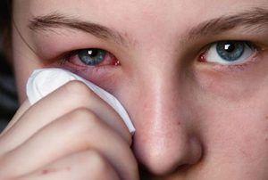 Efectele secundare ale picăturilor de ochi Hilabak și contraindicații pentru utilizare