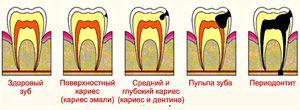 Cum să tratați cariile dentare