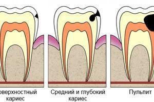 De ce sunt carii pe dinți