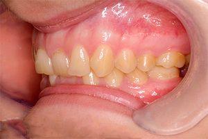 Simptome de muscatura inalta