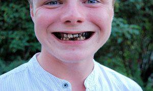 Cauzele apariției dinților putredi