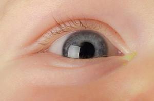 Cum se manifestă conjunctivita la copii?