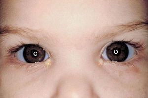 Descărcarea puroiului din ochi