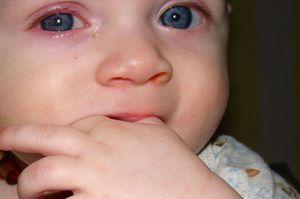 Ochii bolnavi