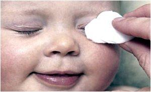 Cum să tratați inflamația ochilor