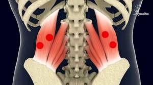Cum se tratează o hernie vertebrală?