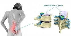 Tratamentul unei hernii pe disc